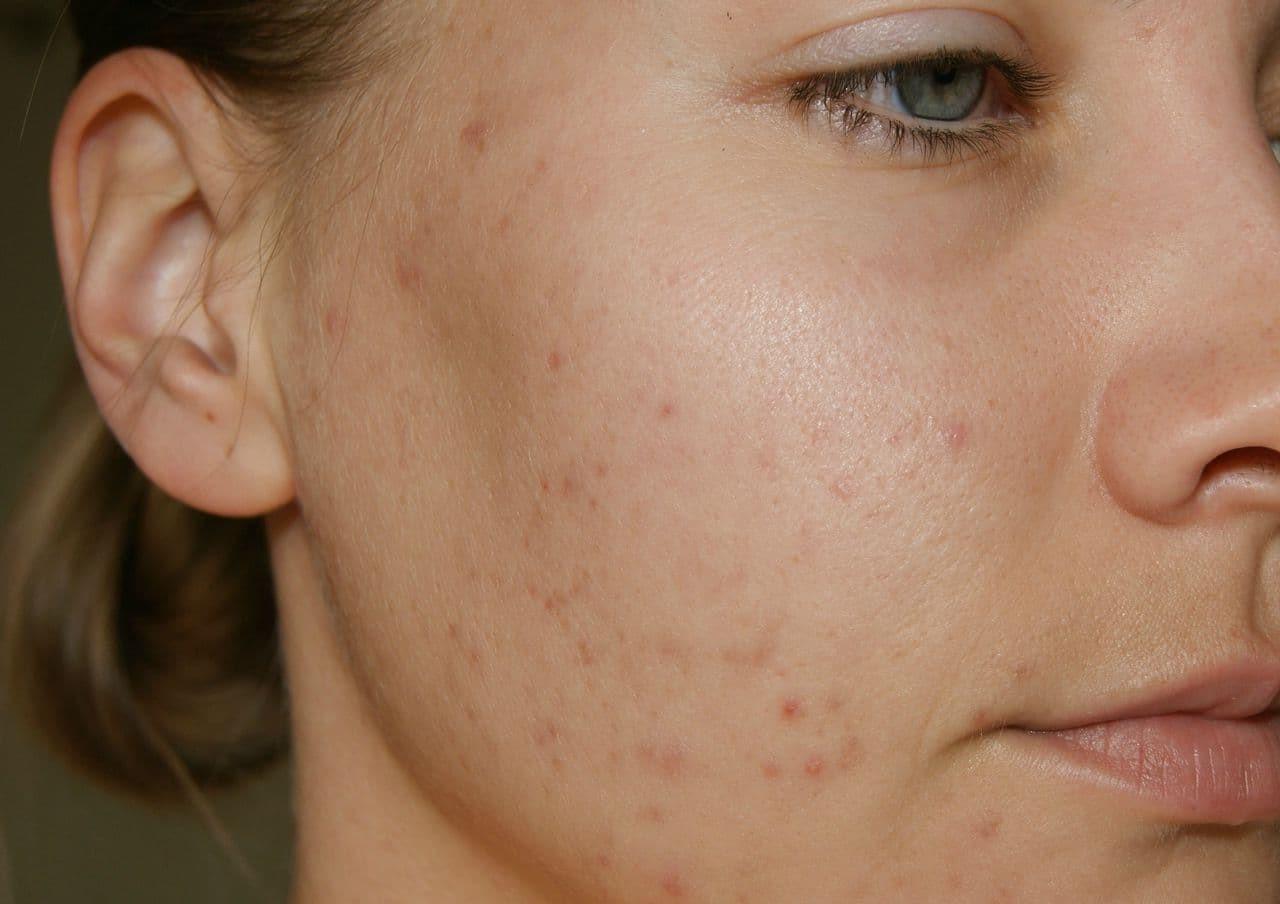 Чем опасны медицинские маски: рекомендации косметолога
