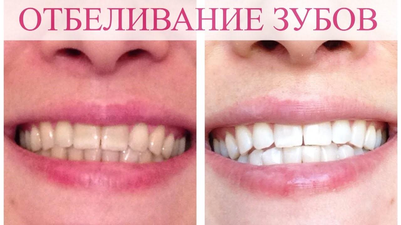 Отбеливание зубов: есть ли риски